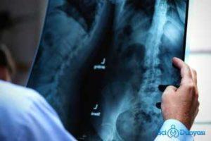 röntgen sonucu